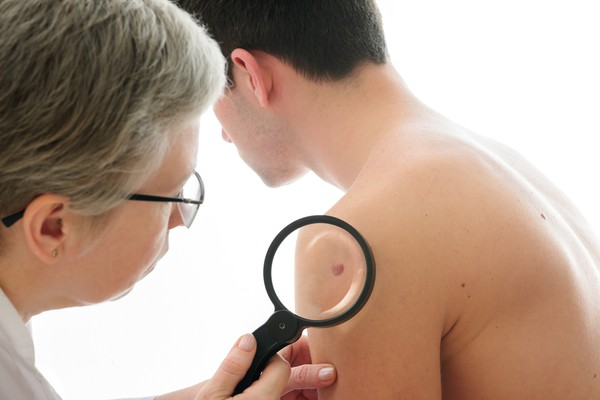 Skin cancer treatment at leading Israeli onco-dermatologists