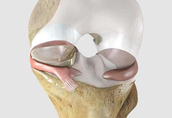 Knee treatment with Implant NUsurface in Israel